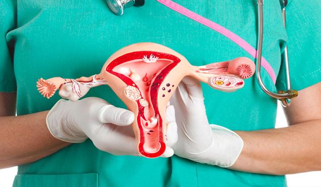 Cáncer de ovario, la enfermedad silenciosa que se puede anticipar con chequeos de rutina